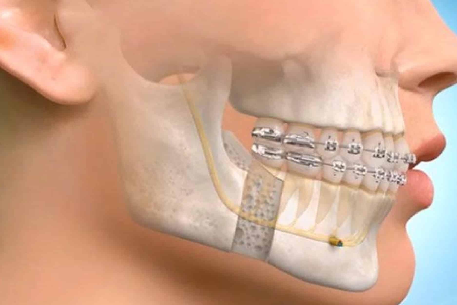 Maxillo facial surgery Oral