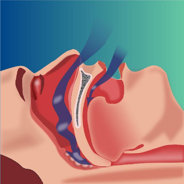 apnea del sueño ICOR