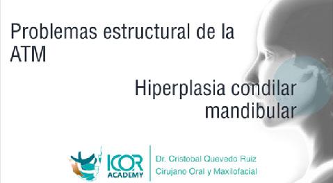 Hiperplasia condilar mandibular