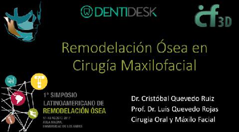 Remodelación ósea en cirugía maxilofacial