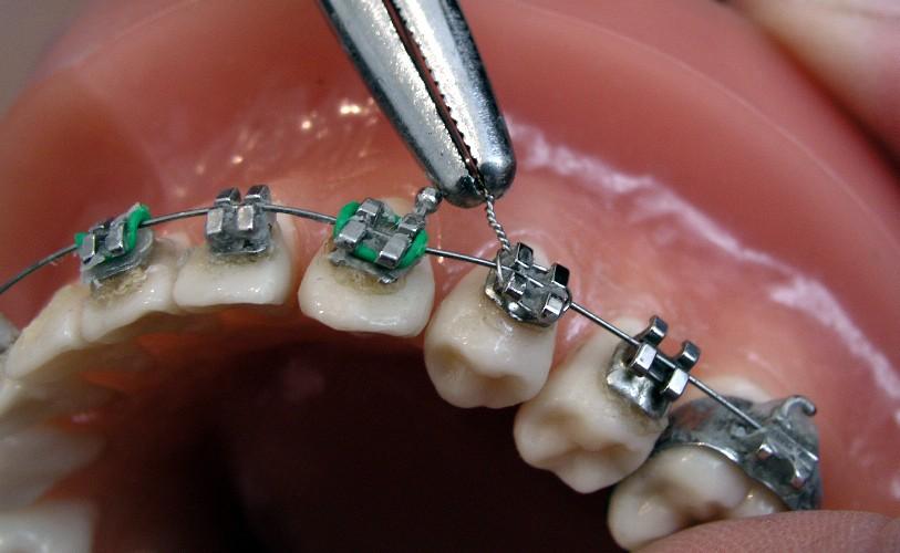 Corticotomia para ortodoncia acelerada