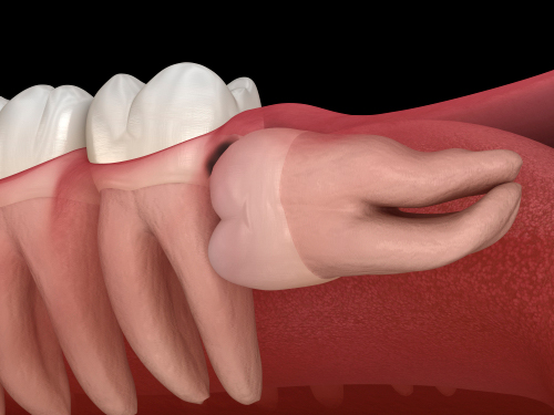 Icor - Terceros molares, Deterioro