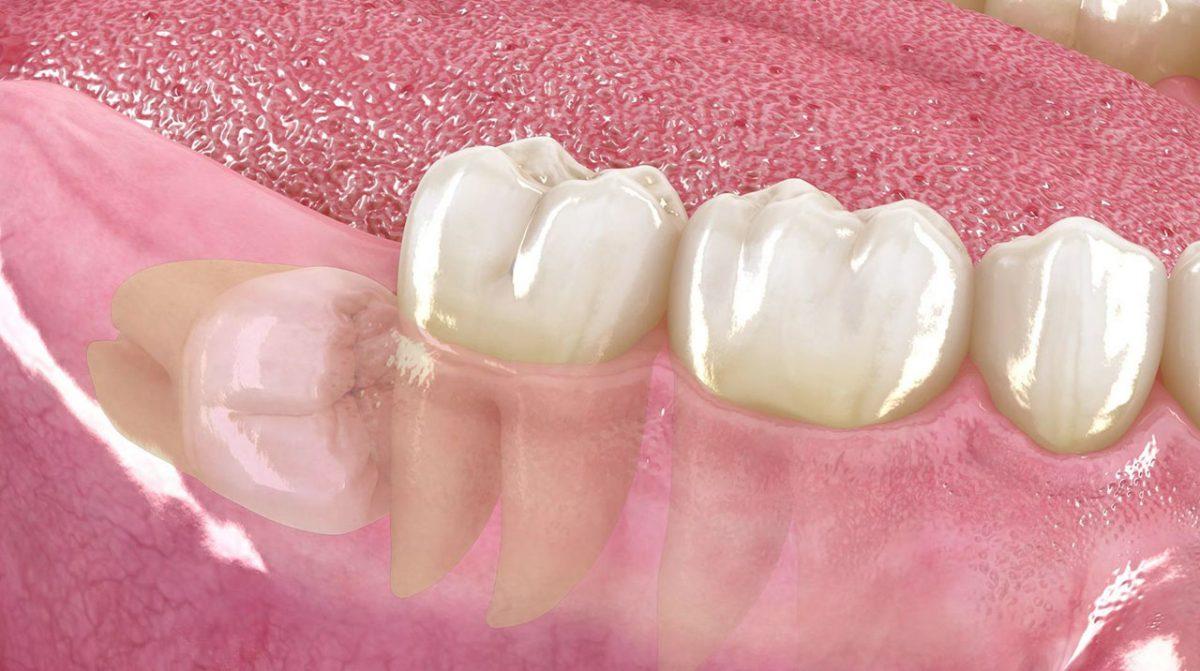 Terceros molares, muelas del juicio, cirugia maxilofacial, cirugia oral, dr. cristóbal quevedo, cirugia bucal, cordales, dentista chile, tercer molar, ortognática, icor, icoracademy, osteotomía